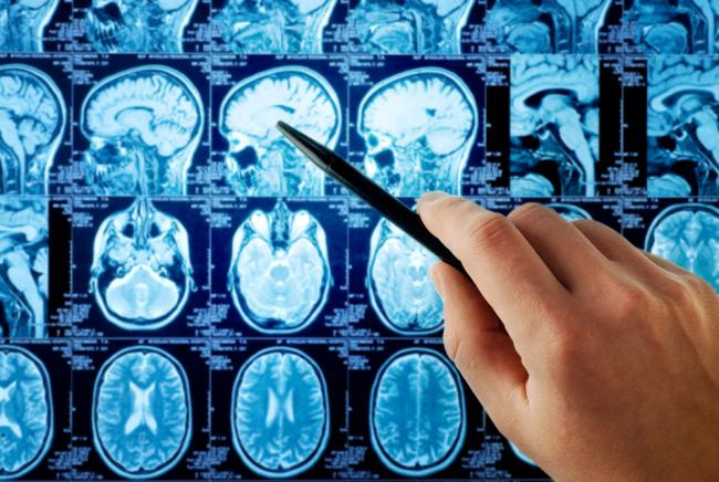 brain scans stock image