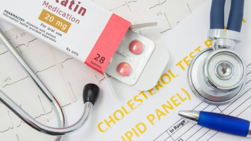 Research reveals protective effects of cholesterol lowing medications in those at risk of dementia